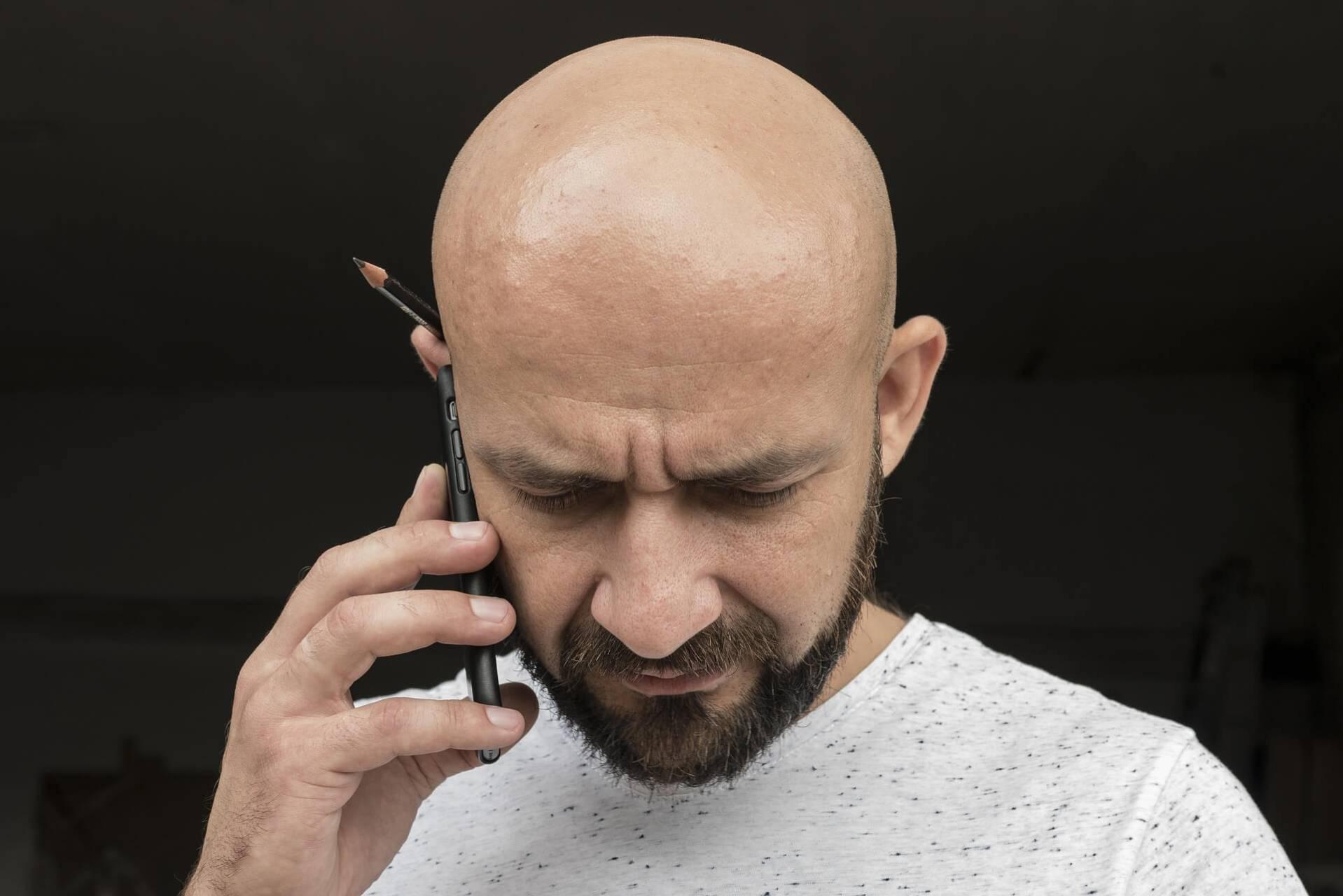 Tips till dig som drabbats av håravfall