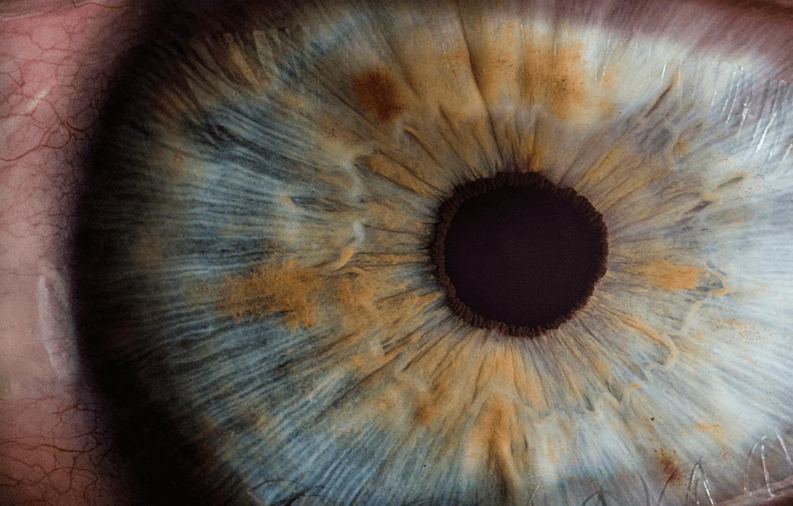Det går att ersätta ett förlorat öga. Foto Unsplash